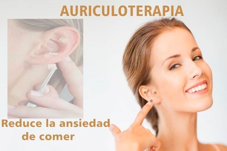 «ACUDIETA» Servicio de dietista con Auriculoterapia